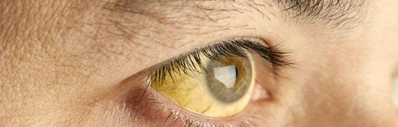 Пожелтевшие белки глаз при отравлении