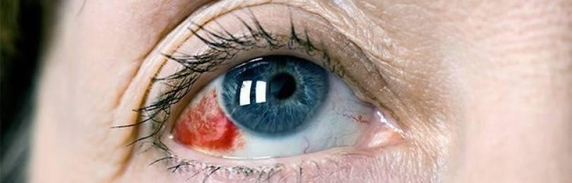 Капли при кровоизлиянии в глаз: что делать, причины и лечение новорожденного в сетчатку и стекловидное тело