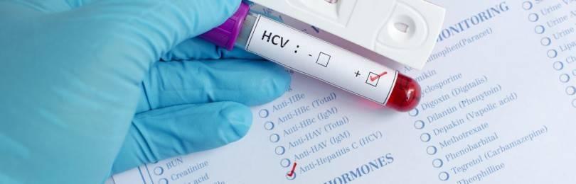 Что такое гепатит C 3 генотип и как его лечить?