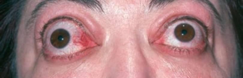 Лечение эндокринной офтальмопатии народными средствами или медикаментами