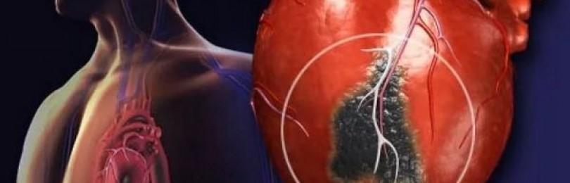 Признаки грядущего инфаркта можно узнать по лицу