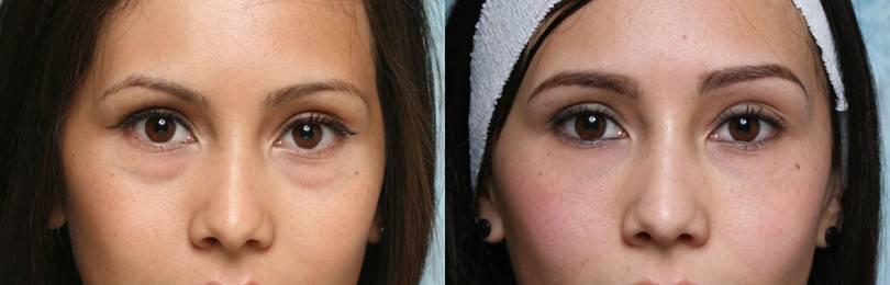 Грыжи под глазами как избавиться без операции