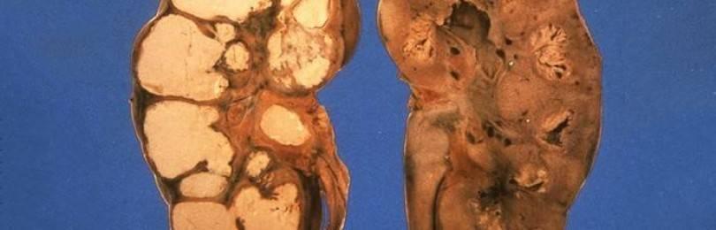Проявление туберкулеза на ранних стадиях у взрослого