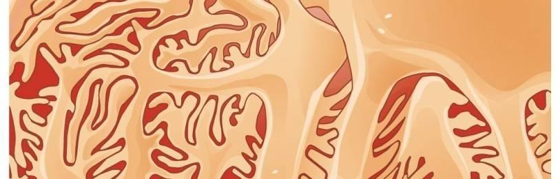 Синдром Дабина-Джонсона: симптомы и лечение заболевания