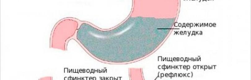Дуоденогастральный рефлюкс: симптомы дгр, лечение