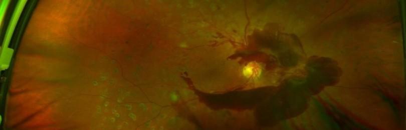Лечение кровоизлияния в стекловидное тело, в глаз