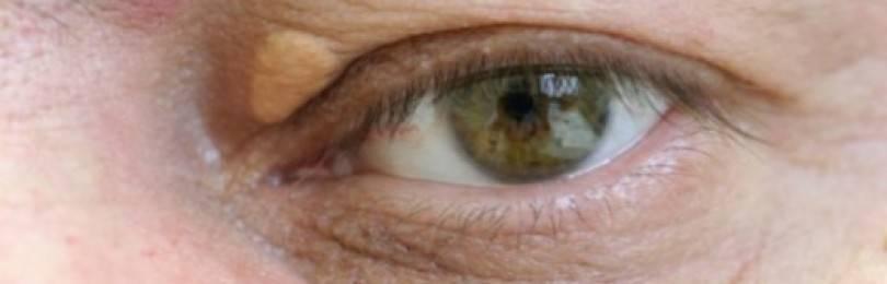 Ксантелазмы век: лечение народными средствами