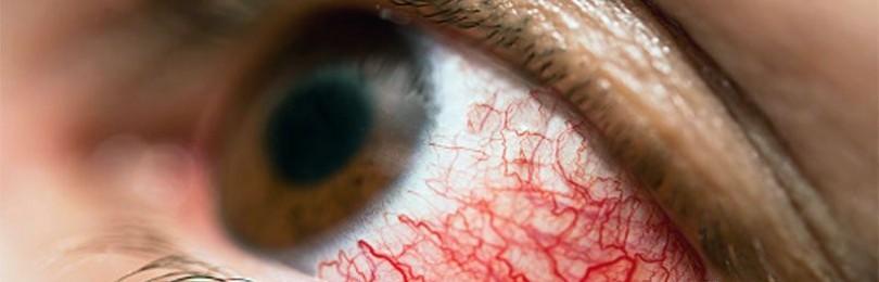 Цвет глаз определяет риск алкоголизма