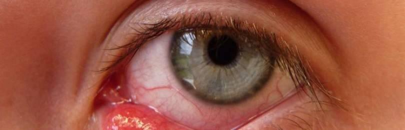 Народное средство от внутреннего ячменя на глазу