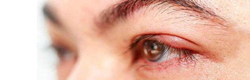 Мазь тетрациклиновая глазная 1% инструкция по применению