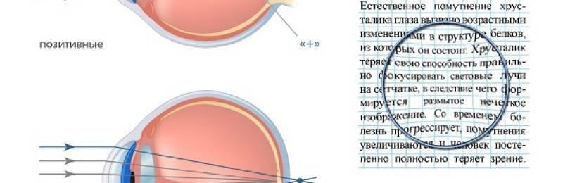 Отличие асферической линзы от сферической