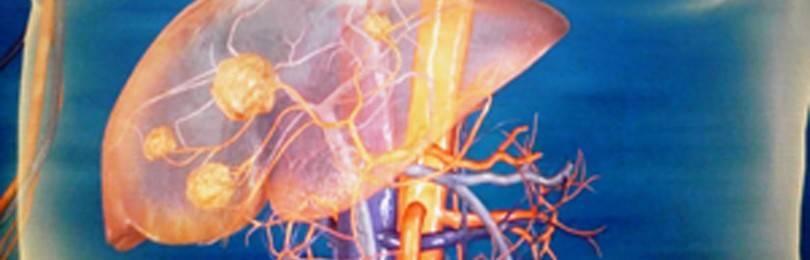 Фокальная нодулярная гиперплазия печени: что это такое?
