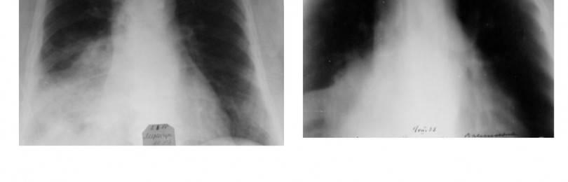 Вопросы диагностики и дифференциальной диагностики туберкулеза органов дыхания в современных условиях