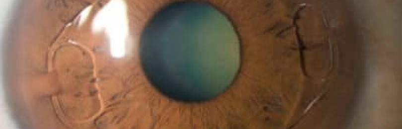 Памятка по уходу за глазным протезом
