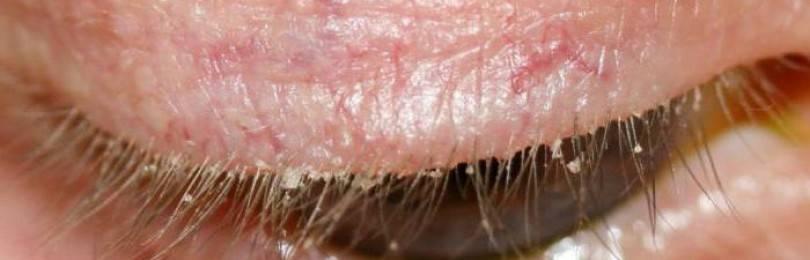 Демодекоз глаз лечение народными средствами