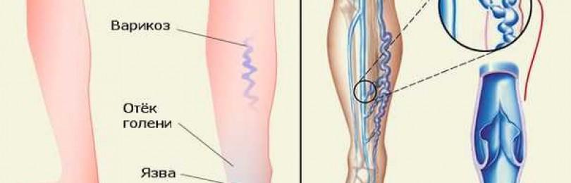 Применение венотоников при варикозе и отеках ног: кремы, гели, таблетки, обзор отзывов