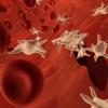 Общий анализ крови при крупозной пневмонии