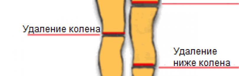 Медицинская энциклопедия — ампутация