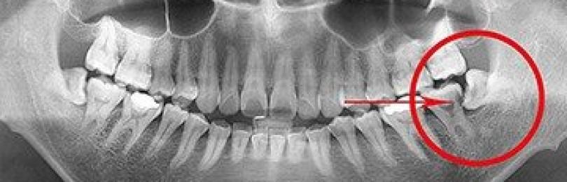 Зубы мудрости названы опасным «лишним органом»