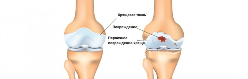 Препарат эксинеф для борьбы с болями в суставах