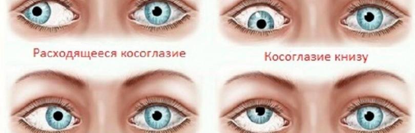 Косоглазие сходящиеся и его лечение