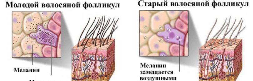 Ученые нашли способ борьбы с сединой