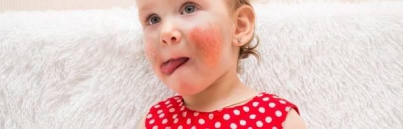 Аллергия на мандарины: фото проявлений реакции на цитрусовые