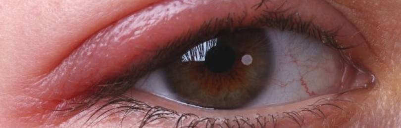 Аллергия глаза чешутся и опухают веки