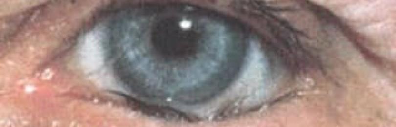 Трихиаз века: что это, причины, симптомы и лечение глаза