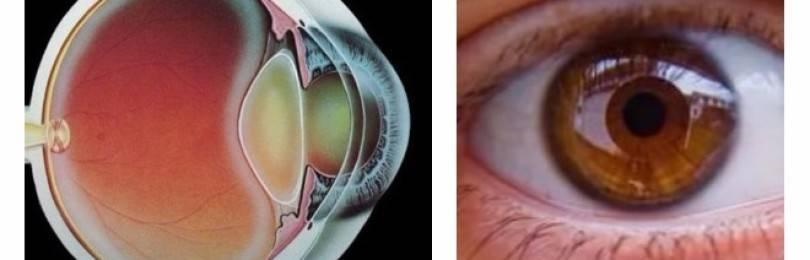Нарушение сумеречного зрения
