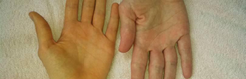 Надпеченочная желтуха: причины развития, симптомы и прогноз жизни