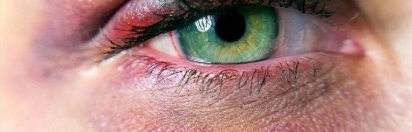 Лечение травмы глаза в домашних условиях