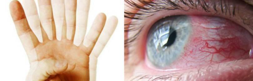Двоение в глазах при шейном остеохондрозе лечение