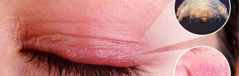 Демодекоз глаз: лечение и обзор эффективных препаратов