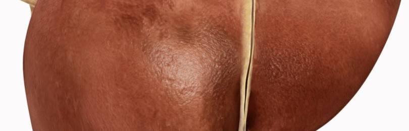 Печеночная интоксикация: симптомы отравления печени