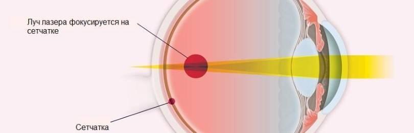 Разрыв сетчатки глаза: серьезно ли это, причины, лечение