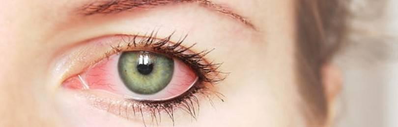 Конъюнктивит глаз: лечение, симптомы и признаки бактериального, вирусного, чем и как вылечить