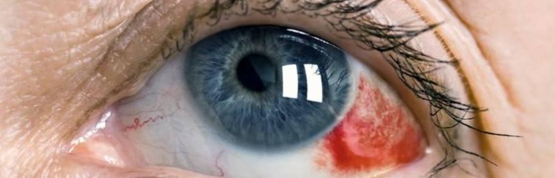 Лопнул сосуд в глазу: причины и лечение, первая помощь, лечение