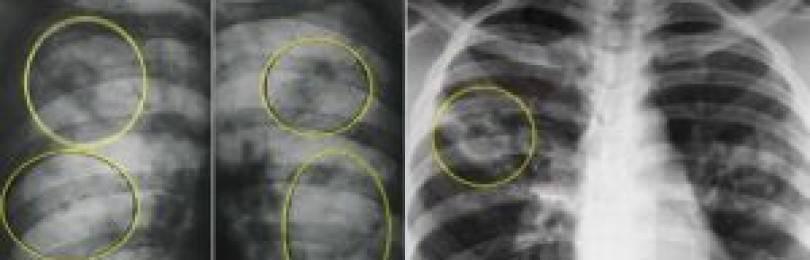 Рентген при туберкулезе легкого