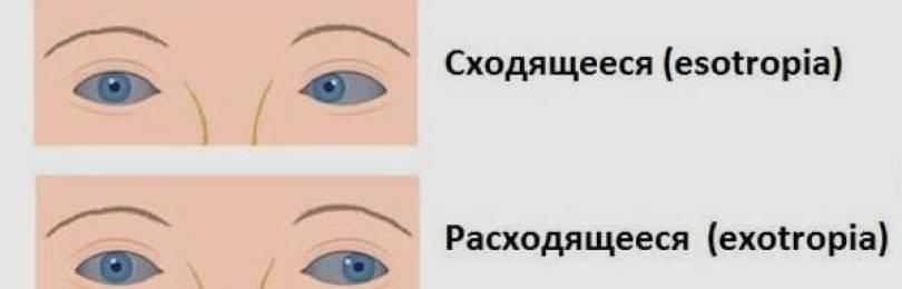 Косят глазки у новорожденного