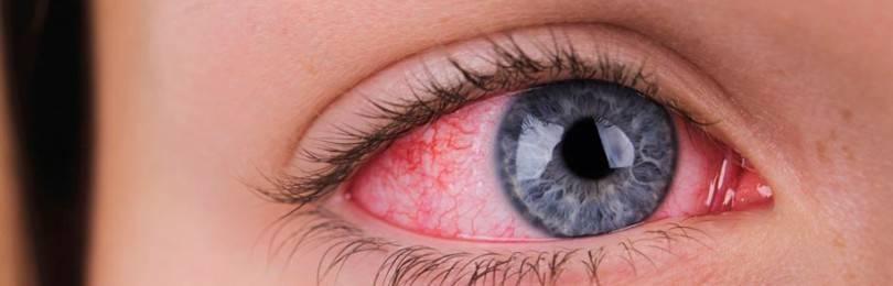 На белках глаз красные прожилки