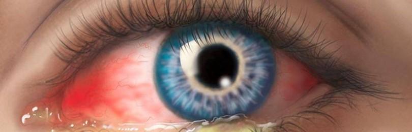 Как убрать красноту глаз: главные причины раздражения