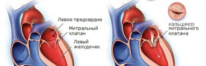 Эргокальциферол (витамин d2) (ergocalciferol (vitamin d2)) инструкция по применению