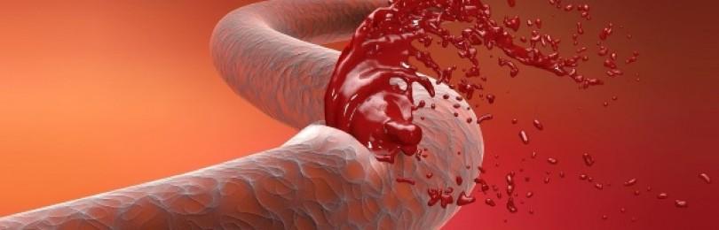 Геморрагический шок. клиника, диагностика, неотложная помощь на догоспитальном этапе