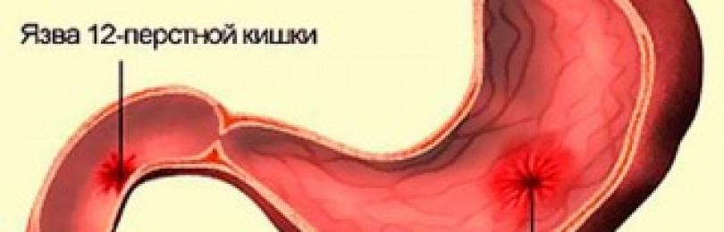 Холагол: инструкция по применению