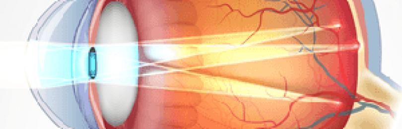 Миопический астигматизм: причины, виды, степени, типы и методы лечения