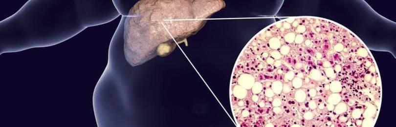 Что такое гепатоз: причины развития, симптомы и лечение