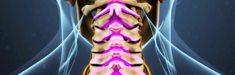 Что такое диспластический остеохондроз и спондилоартроз ...