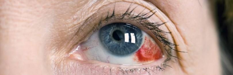 Гемофтальм: лечение и причины кровоизлияния в стекловидное тело