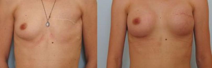 Маммопластика: топ-10 главных вопросов о пластике груди